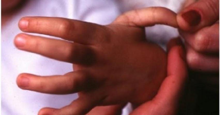 MUCHO CUIDADO: Niños que estiran articulaciones con mucha facilidad podrían estar sufriendo hiperlaxitud, advierte experto de EsSalud - www.essalud.gob.pe