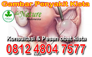 Obatkankerampuh Licensed For Non Commercial Use Only Obat Herbal Kista Ovarium Ampuh Dan Manjur Di Apotik