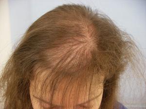 Penumbuh Rambut, Penumbuh Rambut Dikepala, Obat Penumbuh Rambut