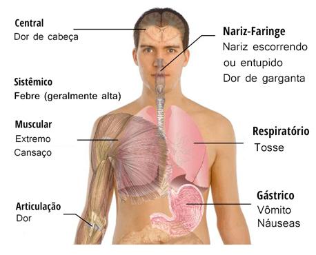 #Gripe | Causas, Epidemiologia, Tratamento e Prevenção da Gripe