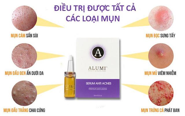 Serum trị mụn Alumi có tốt không? giá bao nhiêu?