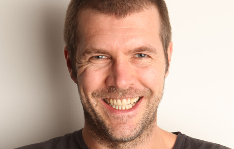 Compare That With Welsh Comedian Rhod Gilbertu0027s U0027matureu0027 Hairline (very  Distinctive When Shaved, Has A Characteristic U0027Mu0027 Shape):