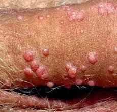 Gambar Obat Munculnya Bintik Kecil Disekitar Kepala Penis