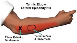 鄭醫師整骨治療保健中心: 肱骨外上髁炎( Lateral Epicondylitis) 俗稱網球肘(Tennis Elbow)