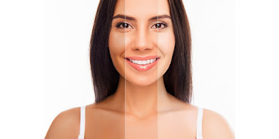 Top Natural Remedies For Skin Whitening