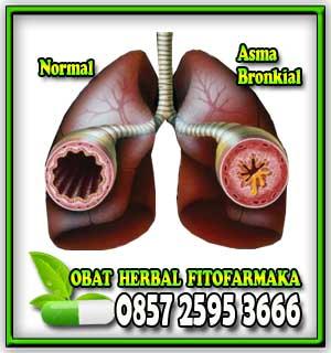 asma, penyakit asma, obat asma, penyebab asma, paru-paru asma