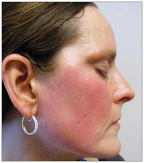 Scarlet Letters, dealing with vascular rosacea, face flushing