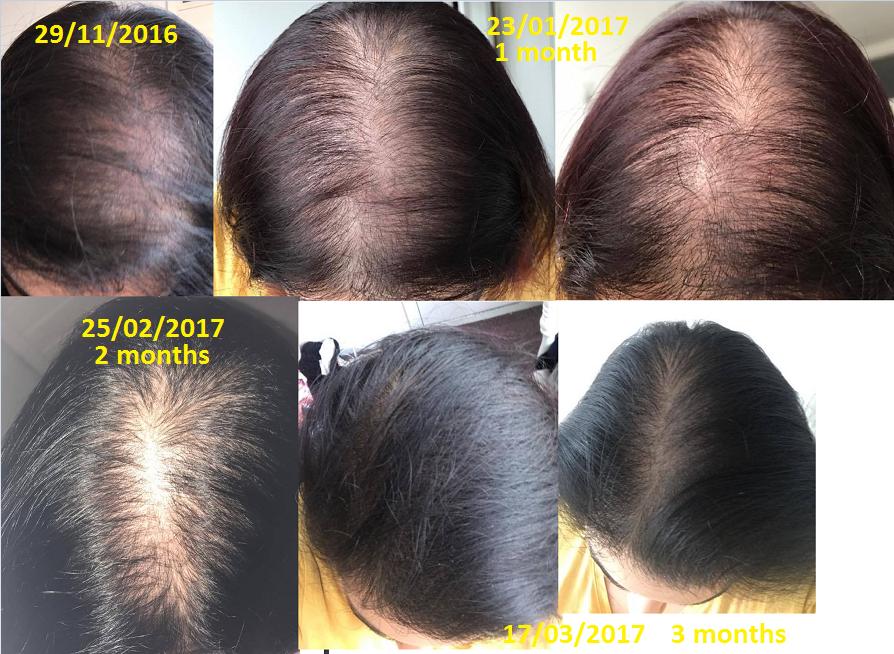 will biotin cause facial hair growth