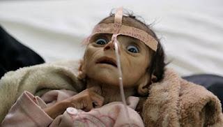 Dampak Pemberontakan Syiah Houthi: 85 Ribu Balita Tewas Didera Kelaparan Parah