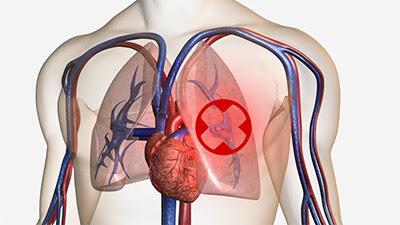 rawatan pulmonary embolism