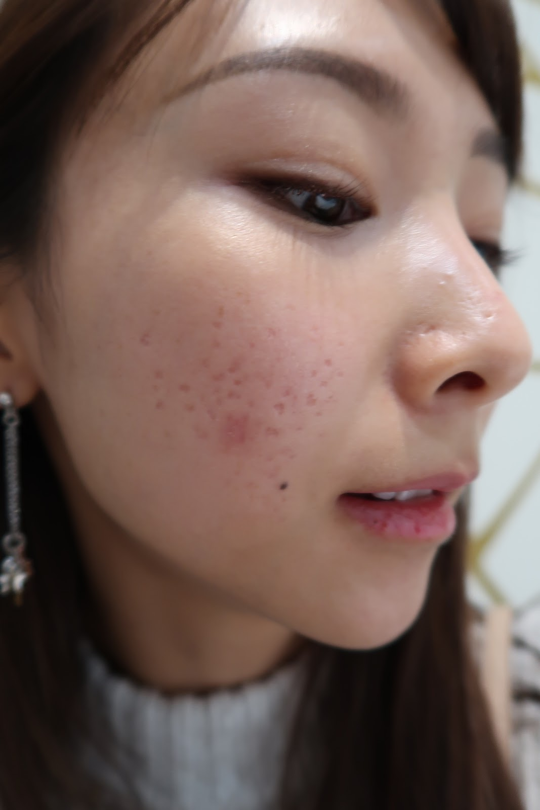 Beauty | Acne Scar Rem...