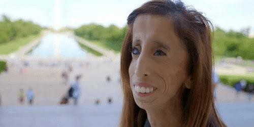 Lizzie Velasquez - Manusia Paling Kurus di Dunia