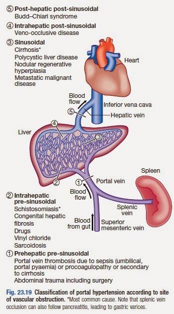 MEDICINE PAKISTAN: Classification of Portal Hypertension..