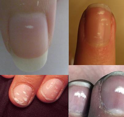 kalkbrist naglar