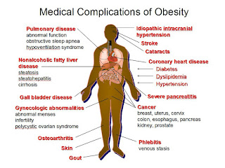 metabolic syndrome, diabetes, complications, sugar, health, high blood pressure, diet, education, lifestyle, weight loss, shakeololgy, beachbody, fitness