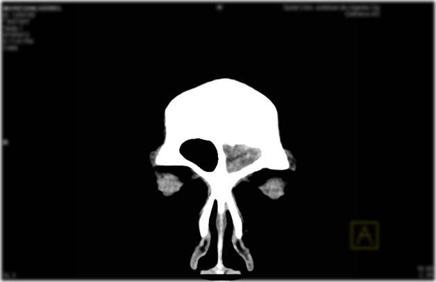 Pansinusitis on the left side - CT Scan ~ Medicine Hack | 628 x 407 jpeg 12kB