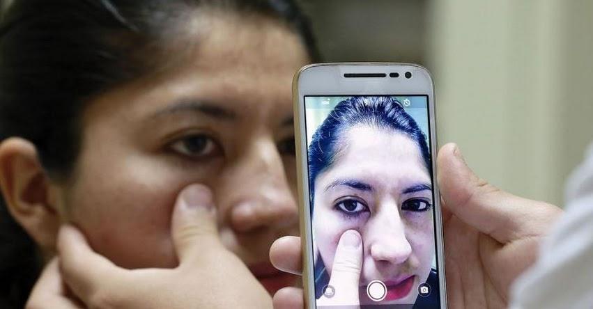 Universidades de Lima norte trabajan método para detectar anemia con fotografía de párpado
