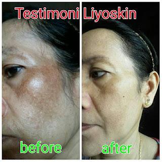 Liyoskin Cream, krim perawatan wajah aman bpom, pemutih wajah