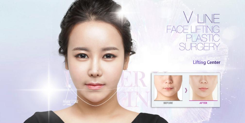 TL Plastic Surgery's Power V Lift - TL ANTI-AGING LIFTING KOREA