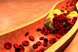 High cholesterol: causes, symptoms and its impact