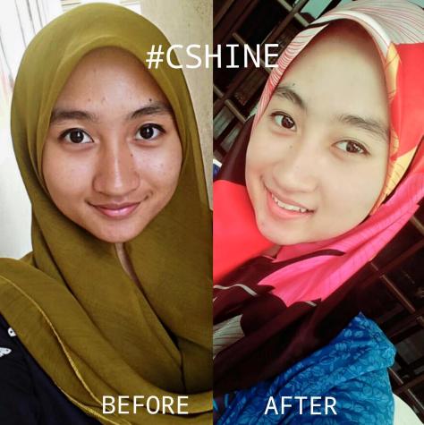 c shine skincare feedback