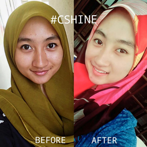 c shine skincare feedback