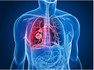 Mesothelioma: A Brief Overview
