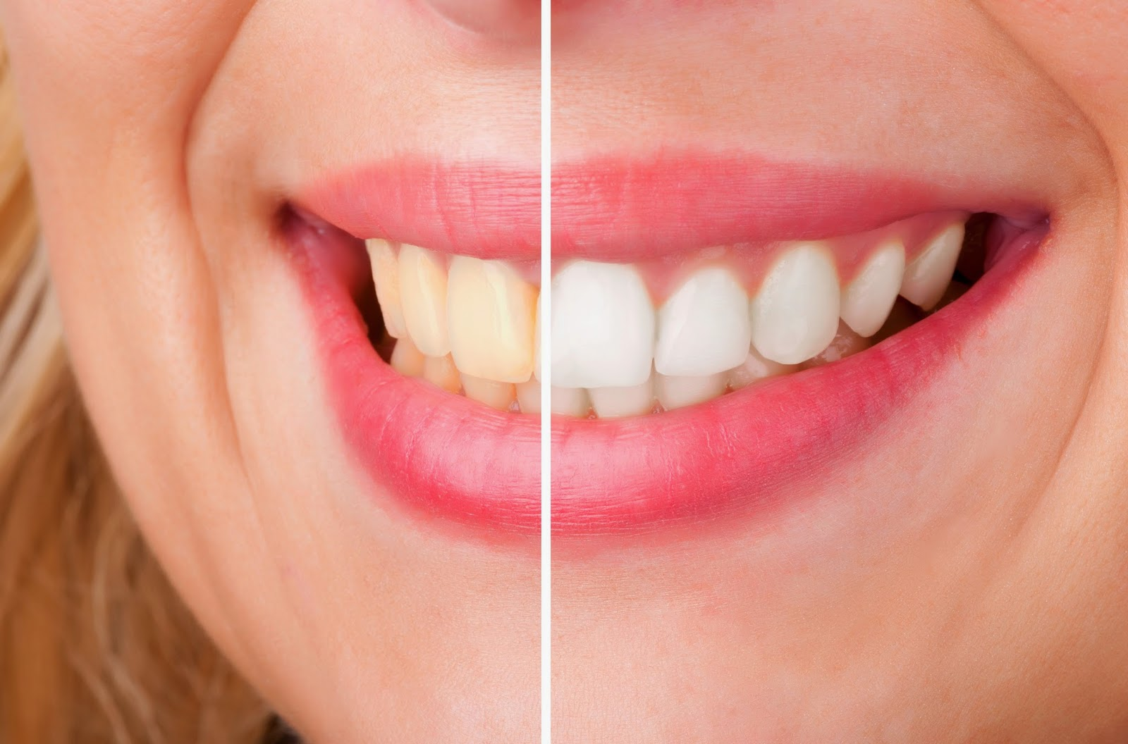 Cara Memutihkan Gigi Yang Sudah Kuning Cara Memutihkan Gigi
