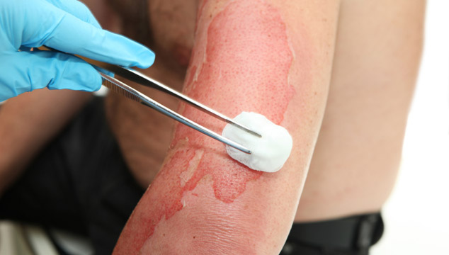 علاج الحروق المنزلية وحروق الماء الحار بالطب البديل