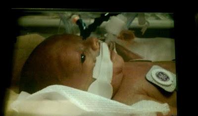 Baby in Incubator