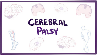 https://vaidyahealthcare.com/cerebral-palsy.html
