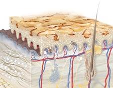 Triệu chứng của làn da khô