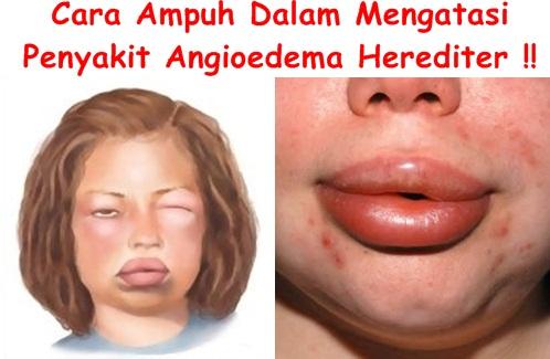 Obat Tradisional Angioedema Herediter