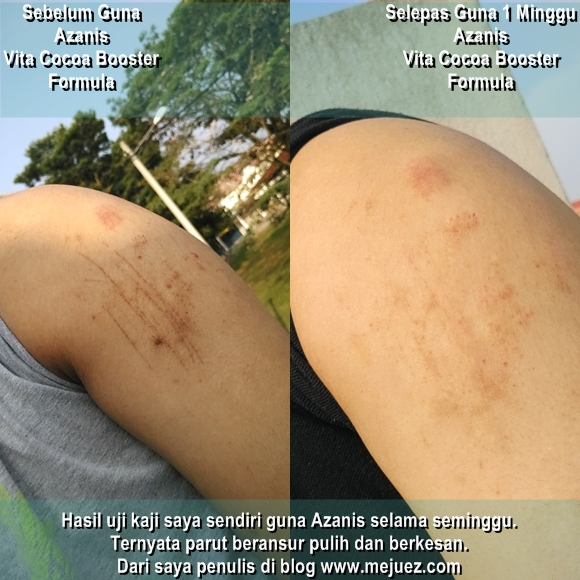 Azanis Scar Serum Hasil Testimoni Ujikaji Selama Seminggu