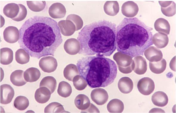 Cell hairy leukemia treatment