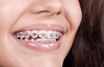 Tips During Orthodontics Invisalign