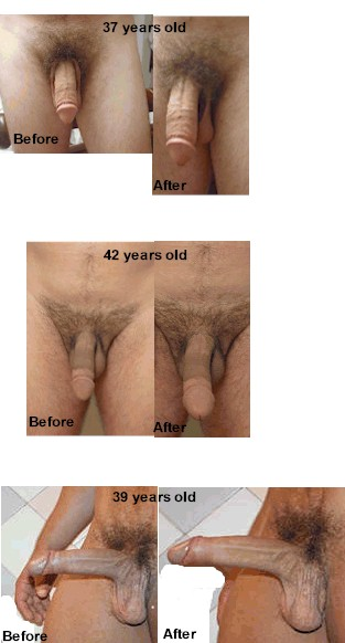 Fast result penis enlargement exercises