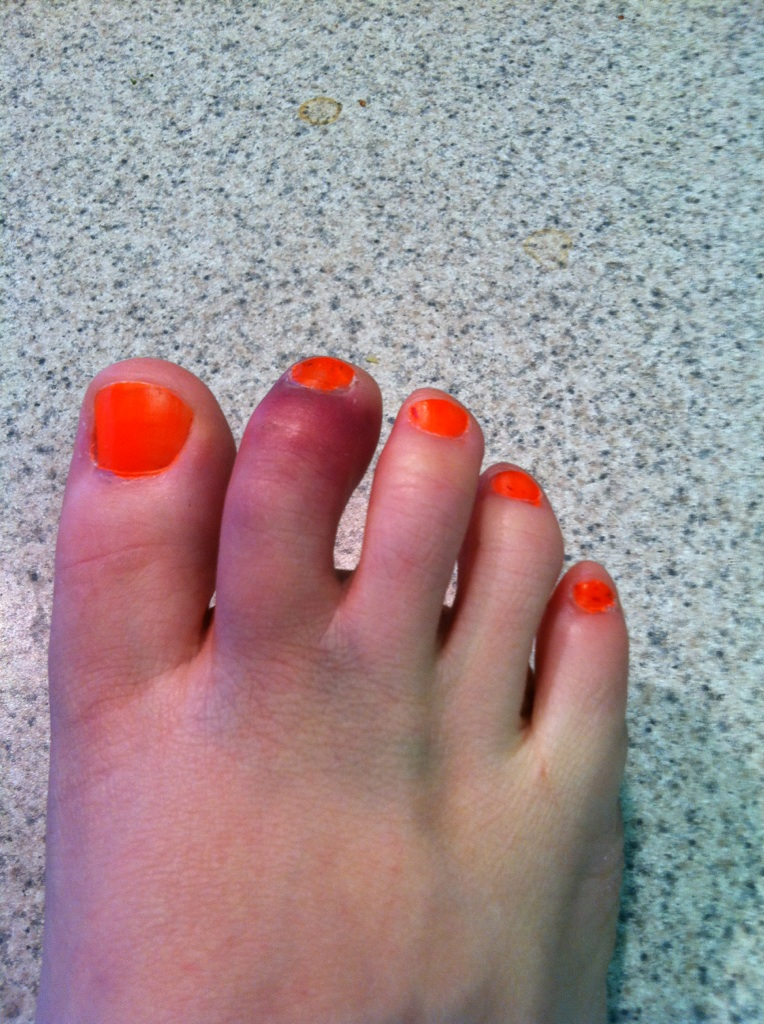 Fractured Toe - Fracture Treatment