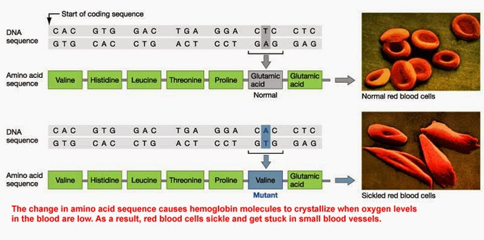 Biochemistry of Sickle cell anemia