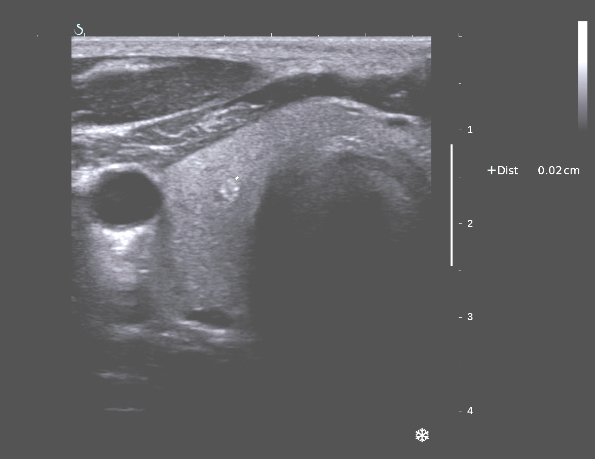 Vietnamese Medic Ultrasound Case 338 Thyroid Cancer Dr Phan