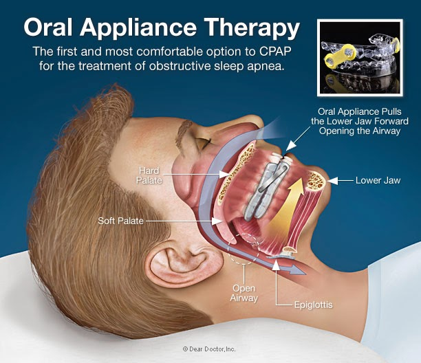 Oral Sleep Appliance 84