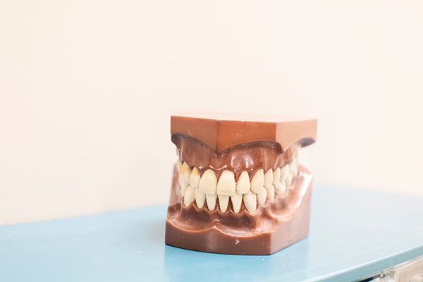 Here's How to Get Rid of Plaque on Teeth