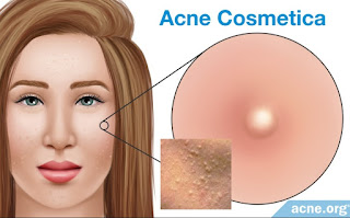Acne - Avoid Comedogenic Products