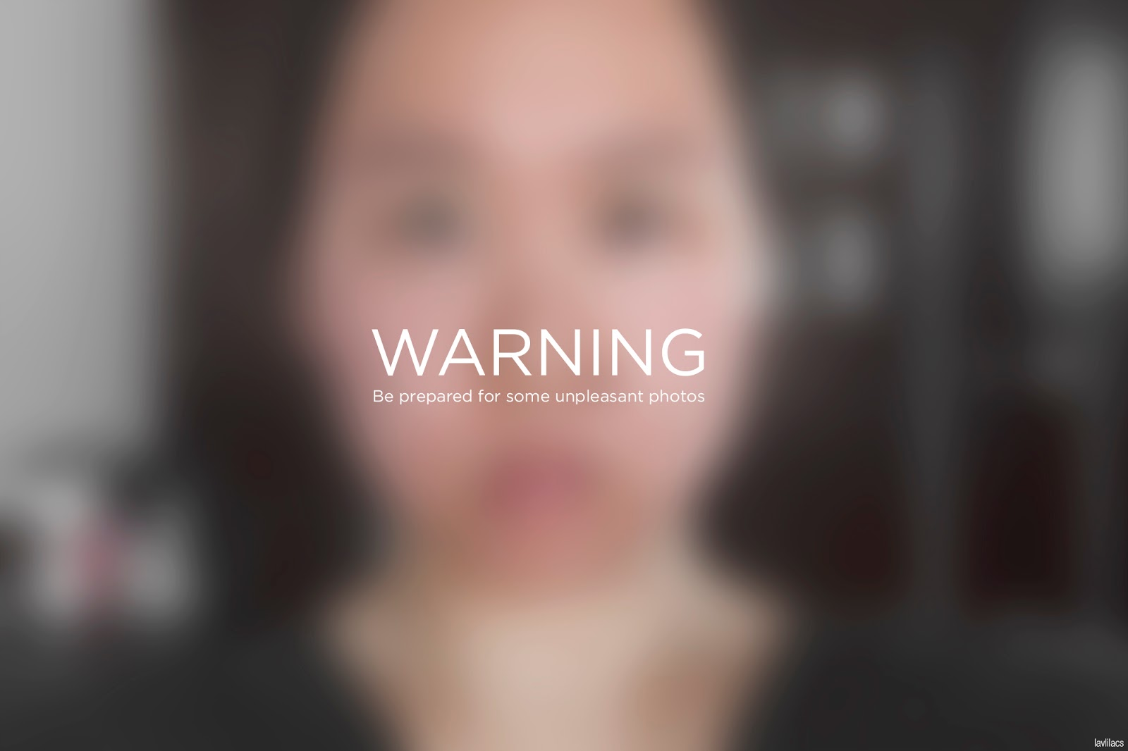 lavlilacs skin allergy - warning