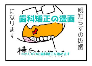 歯科矯正の漫画 4 矯正は自己満足?編