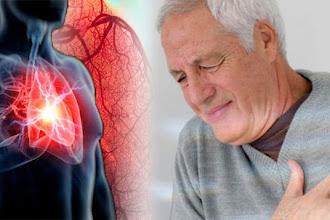Gần 20% dân số Việt Nam mắc bệnh tim mạch