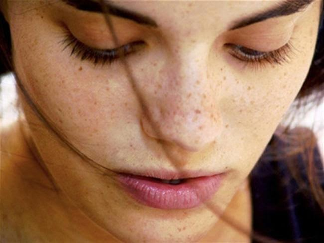 How To Remove Dark Spots From The Face Naturally Daily Health and