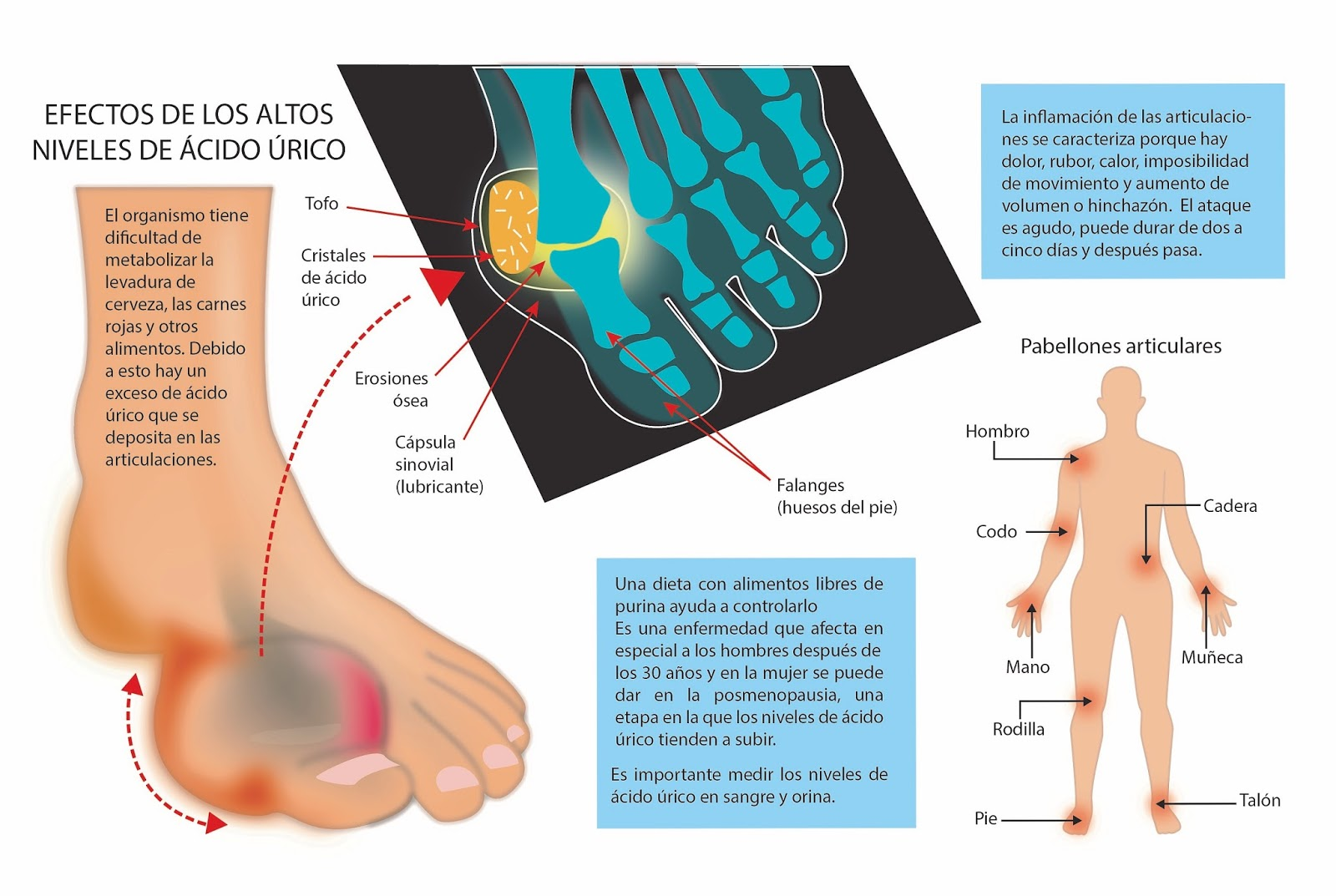 Anemia y acido urico alto acidi urici alti gravidanza remedios para el acido urico en codos - Alimentos que ayudan a eliminar el acido urico ...