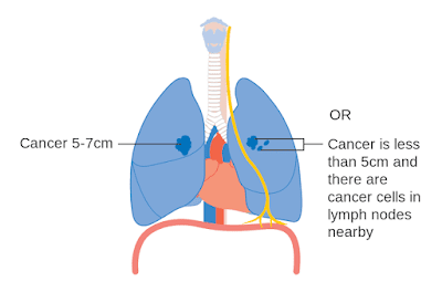 Lung Cancer to the Brain