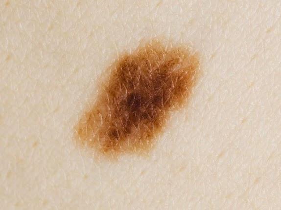 remove junctional moles